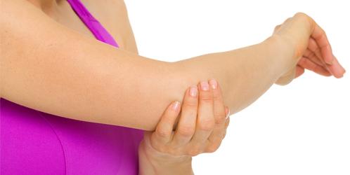 Presenza di alterazioni intra articolari nelle instabilità laterali di gomito.