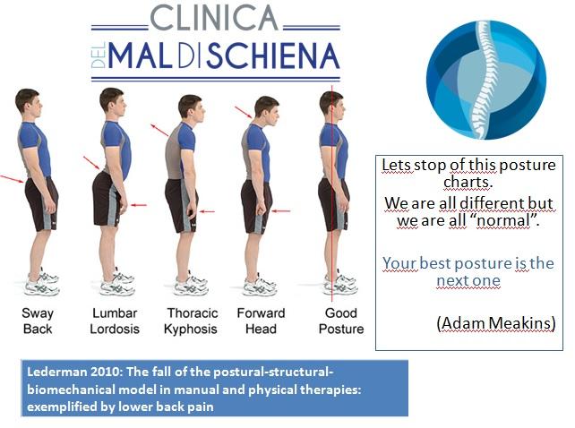 Una cattiva postura è causa di dolore alla schiena?